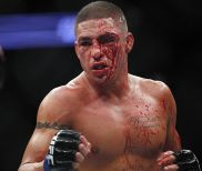 A Loss Should Not Define Diego Sanchez's Future at Featherweight