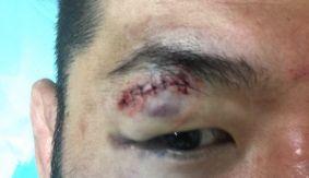Riki Fukuda Off ROAD FC 032 Due to Cut; Middleweight Contender Bout vs. Kim Hoon Postponed