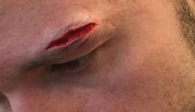 Trey Lippe Morrison Off Feb. 10 ShoBox Due to Cut Suffered in Training